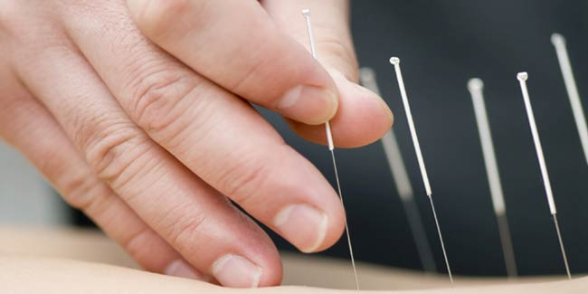 acupuncture-2-650x325